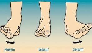 tre piedi che mostrano i diversi tipi di camminata: pronato, normale e supinato
